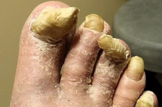 Sandalen of teenslippers alleen voor mooie voeten Nieuwspaal